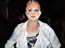 René d'Azur après sa greffe faciale et avant son rejet final. Reconstitution du 15 février 2004 au Désappartement, Nice.